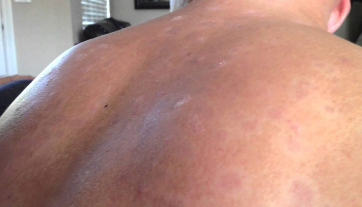 How to Prevent Pimples on Back of Neck